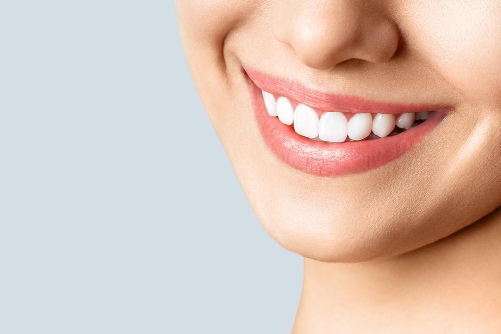 Girl with teeth whitening
